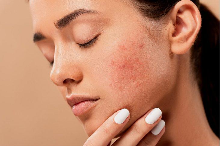 dermatólogo en Rivas